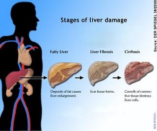 Fatty Liver Progressin